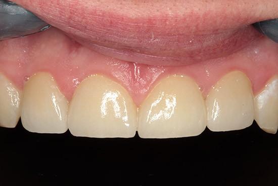 Po: atstatyta danties implantu, presuotos keramikos vainikėliais ir laminatėmis naudojant mikroprotezavimą