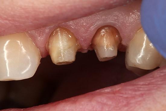 Prieš: Endodontinis gydymas