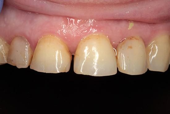 Prieš: diastema tarpas tarp dantų