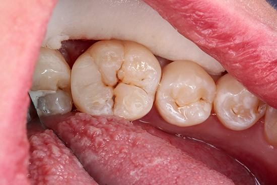 Po: plombavimas nekeičiant danties okliuzijos