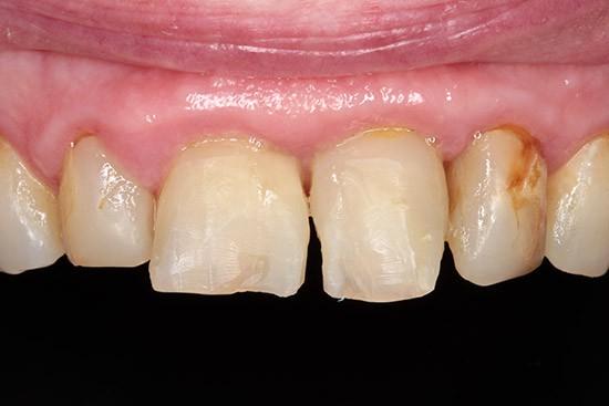 Prieš: dideli ėduonies pažeidimai ir plombos, dantys sutvirtinti stiklo kaiščiais