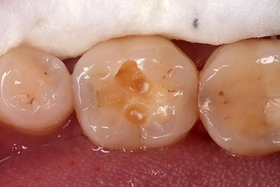 Prieš: Eduonies pažeidimas išvalytas tausojant sveikus danties audinius
