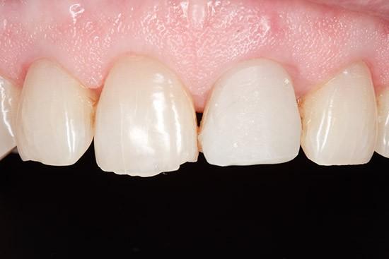 Prieš: danties vertikalaus lūžio atstatymas