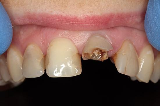 Prieš: lūžęs dantis