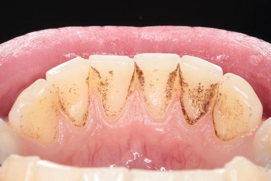 Dantų-akmenys-apnašos-ir-pigmentinės-dėmės