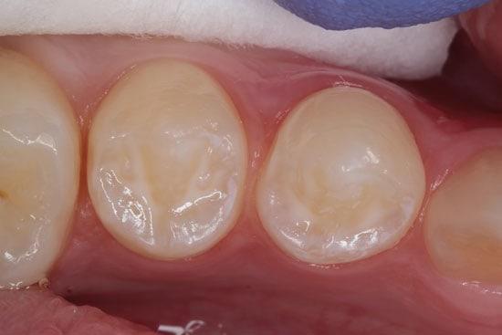 Dantų-silantai-ėduonies-prevencija
