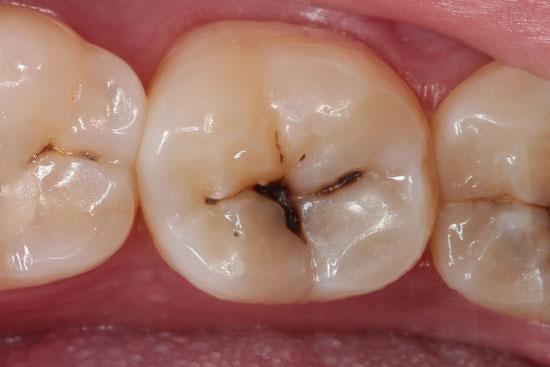Prieš: danties vagelių ėduonis pigmentinės dėmės tamsiai rudos
