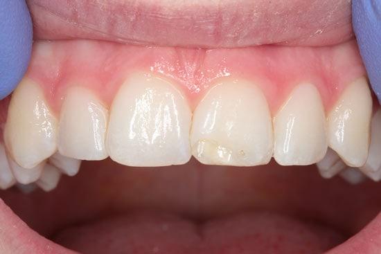 Priekinio-danties-emalio-hipoplazija