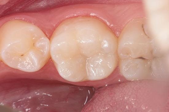 Krūminio-danties-atstatymas-nanokompozitai