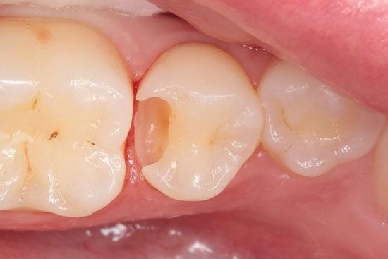 Prieškrūminio-danties-ėduonis